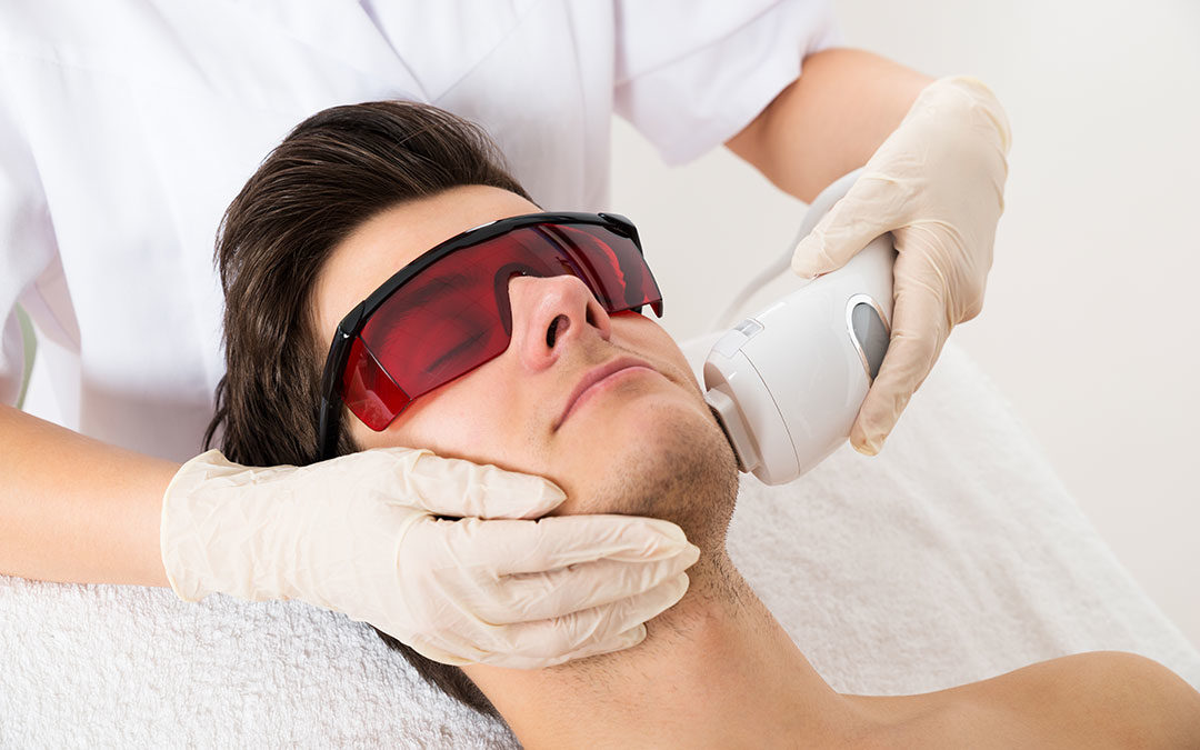 6 Reasons Why Men Need To Consider Laser Hair Removal
