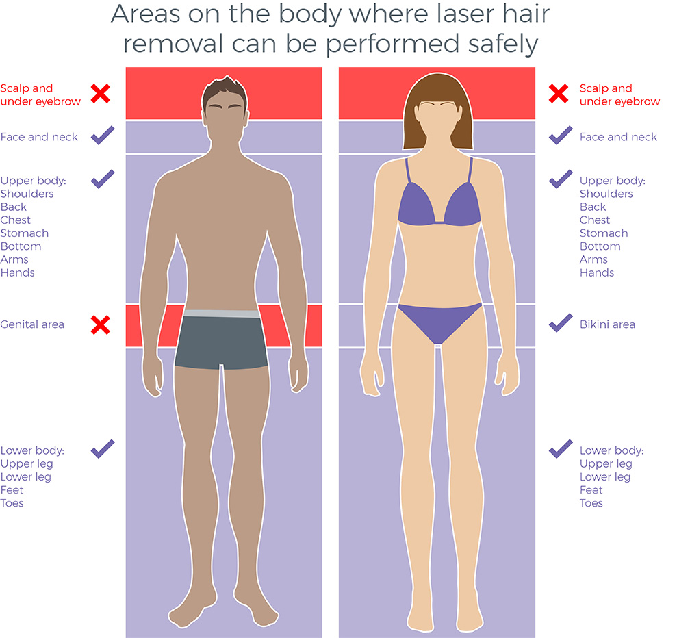 Laser Hair Removal Avance Clinic
