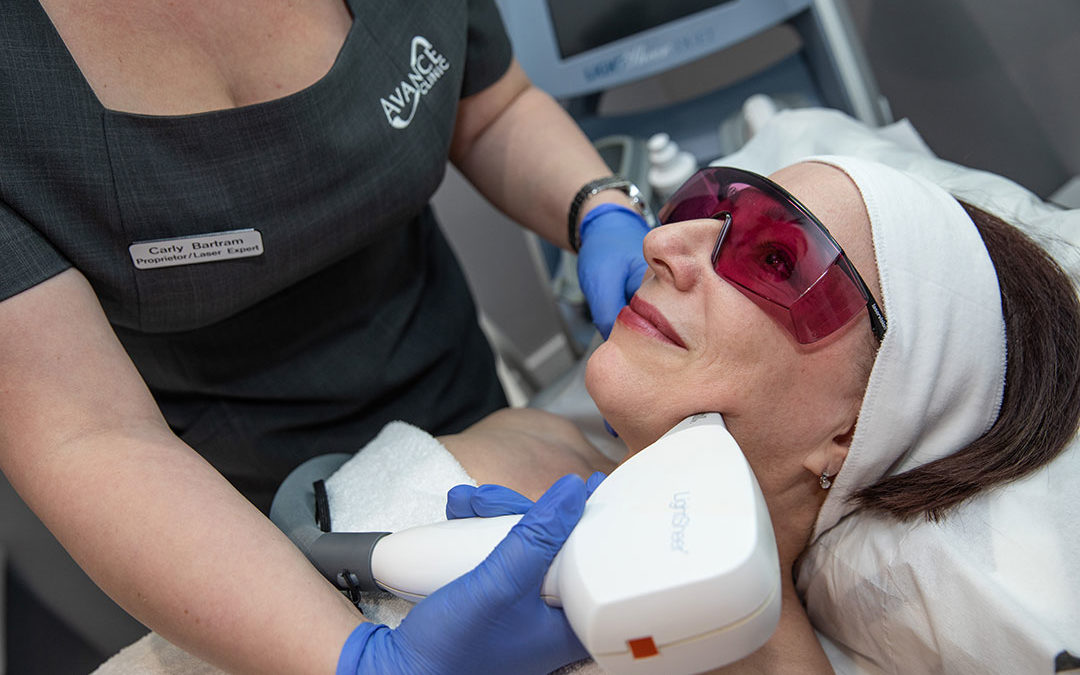 Why choose Derby's Avance Clinic for laser hair removal?